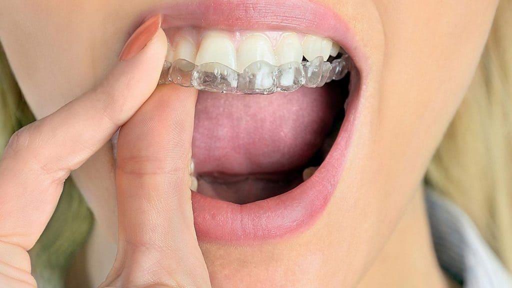 Bruksizam i činjenice o škrgutanju zubima