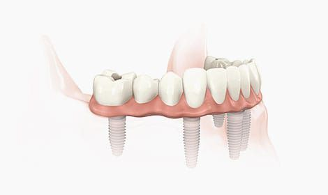 Fiksni most na implantatima (All on Six) - Smile dentalna klinika