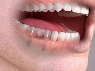 Zubni implantati Straumann - dentalni implantati - Poliklinika Smile Opatija