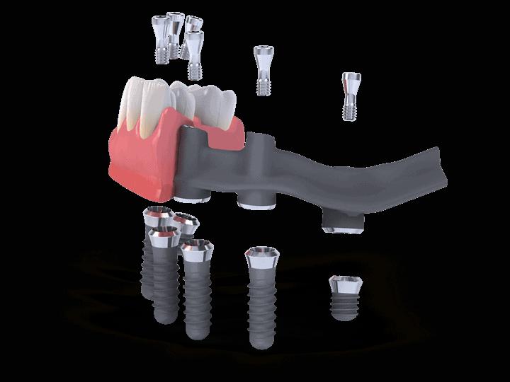 Straumann Pro Arch - Smile dentalna klinika