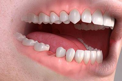 zacijeljivanje Smile dentalna klinika | Ablauf