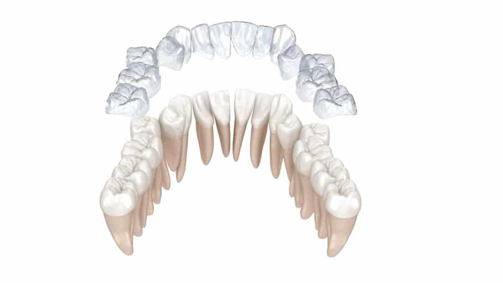 Prozirni aparatić za zube Invisalign