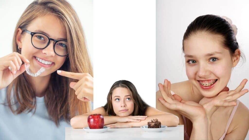 Aligner - prozirni aparatić za zube - nevidljivi aparatić za zube - apparecchio trasparente