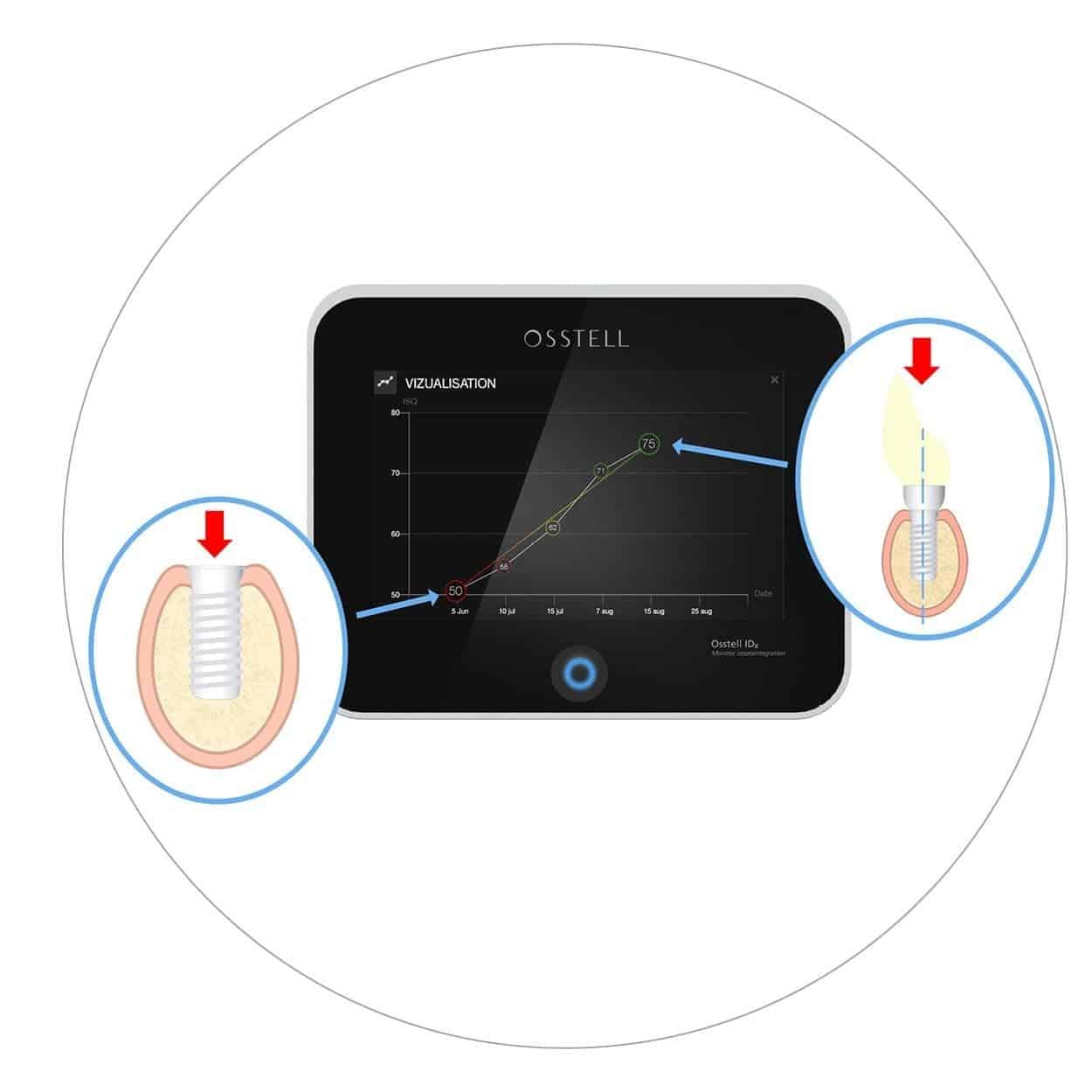 Mjerenje stabilnosti zubnih implantata