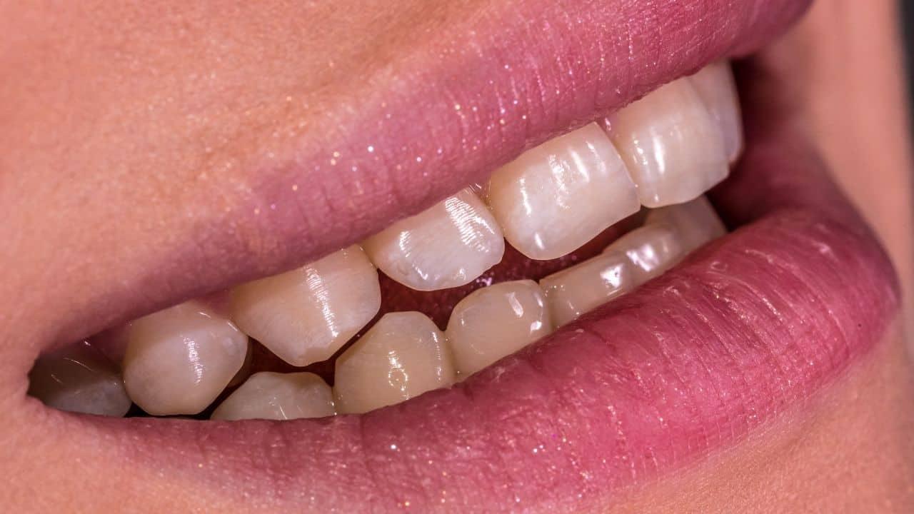 Digital Smile Design - smile makeover - Poliklinika Smile