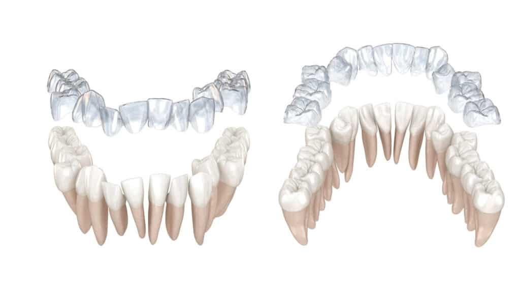 3D zubi
