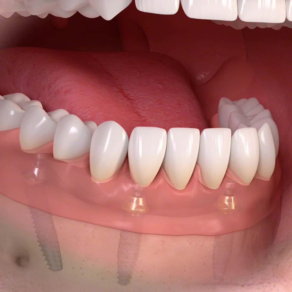 | All on 4 / ProArch ® zirkon in loc. anesthesie