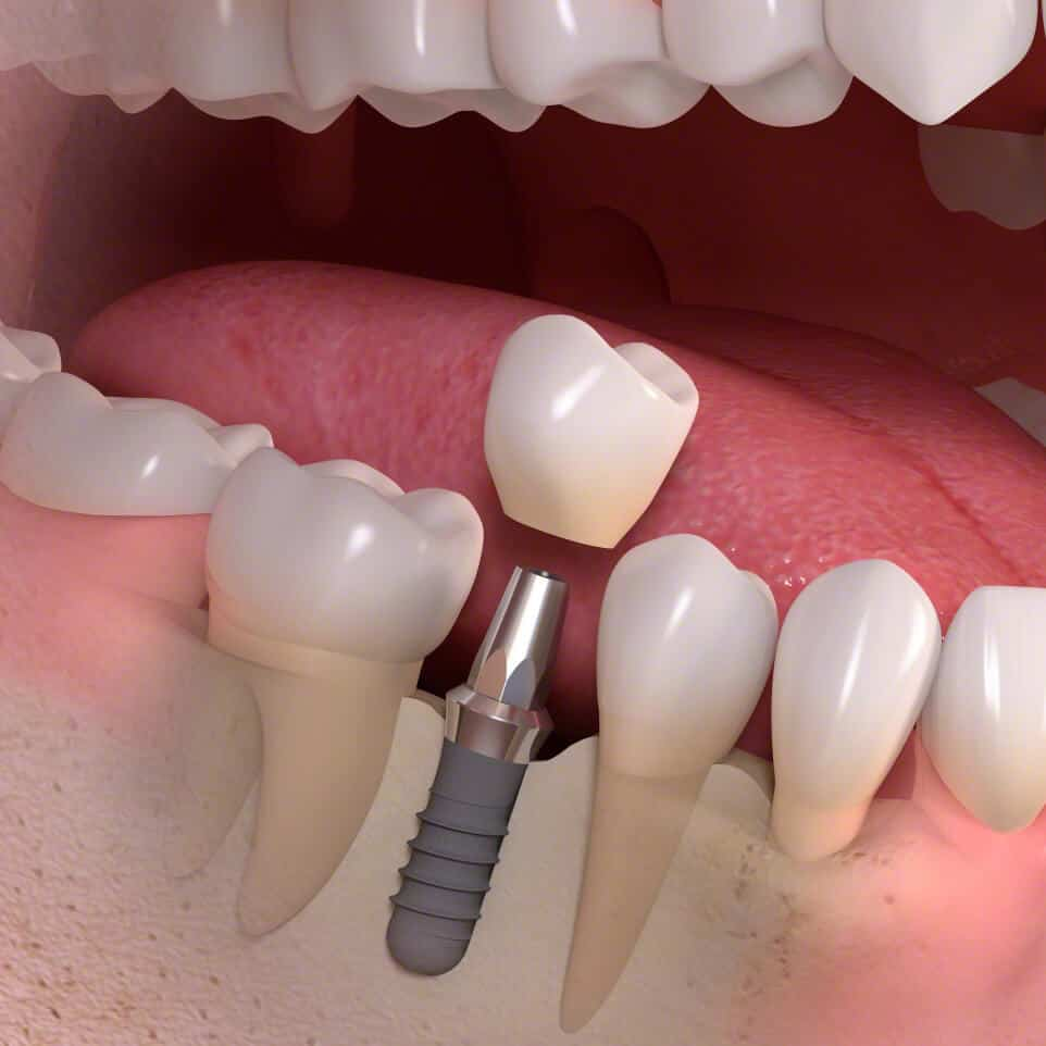 Straumann Implantat