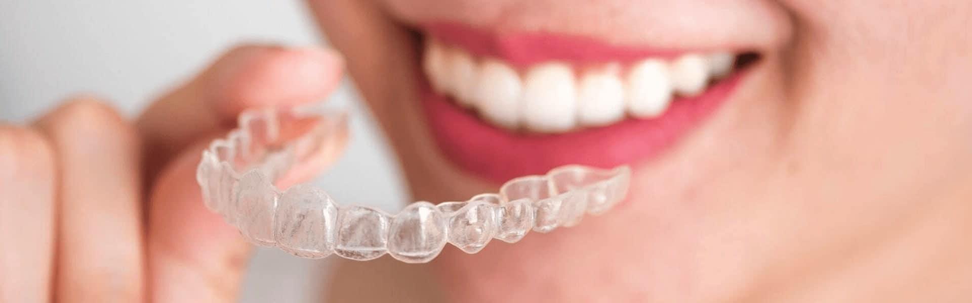 Prozirni aparatić za zube Invisalign - apparecchio trasparente invisalign