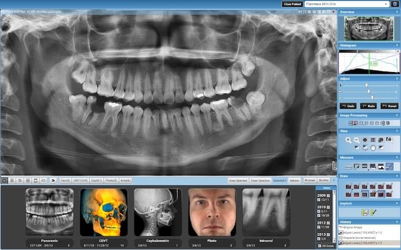 Stomatološka poliklinika Smile Opatija - dentalna poliklinika - zubna poliklinika - implantološka klinika