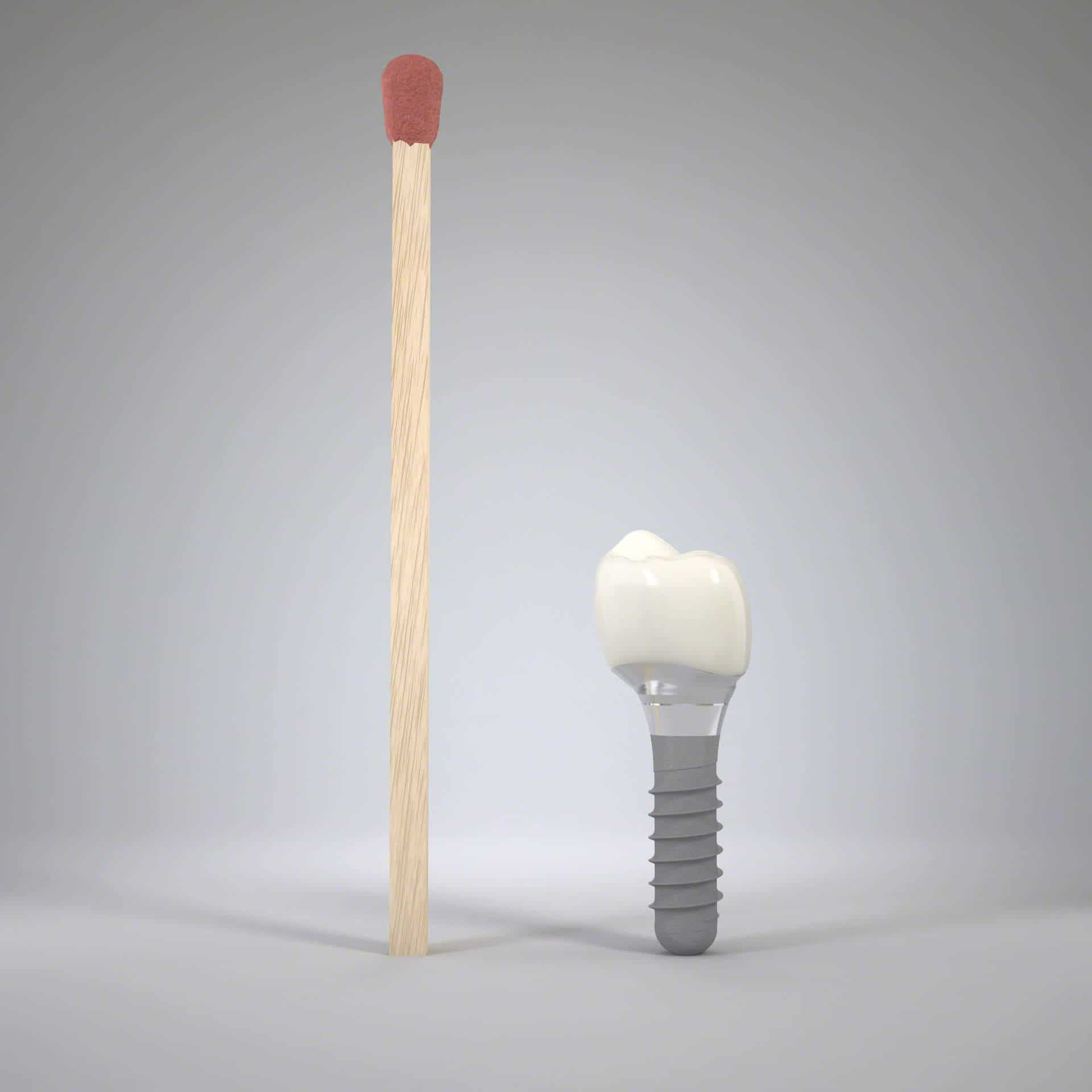 Size of an implant borne artifical tooth | Straumann ® implant with crown