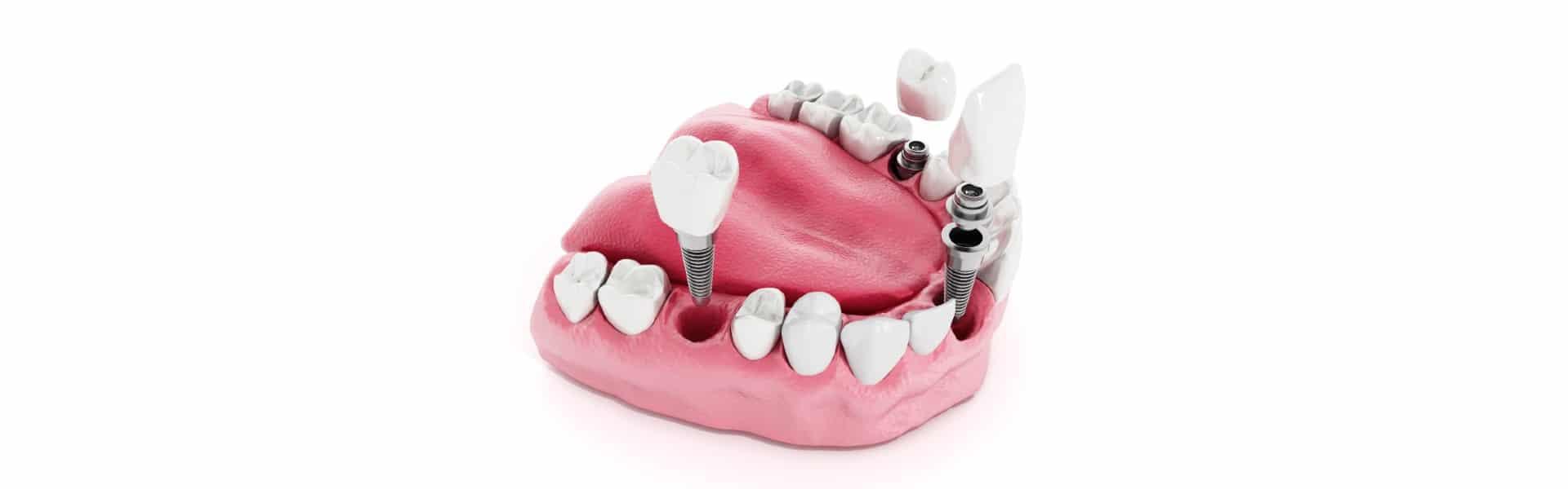 Marka zubnih implantata - Marchio di impianti dentali - Straumann - Poliklinika Smile Opatija