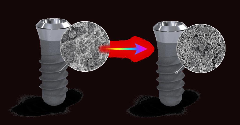 Implantat upgrade
