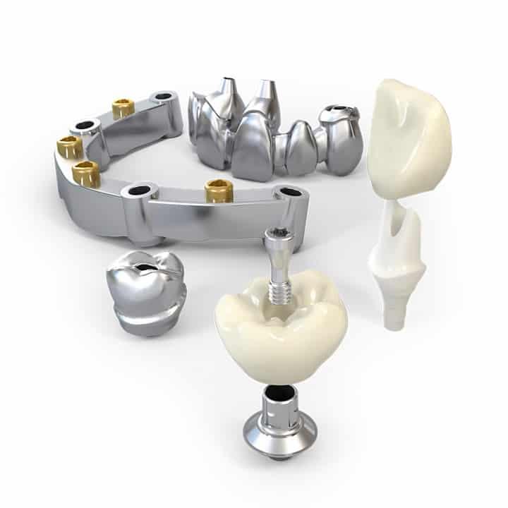 Stomatološka poliklinika Smile Opatija - dentalna poliklinika - zubna poliklinika - implantološka klinika - proces implantološke terapije