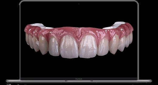 smartmockups k93rty9j | All on 4 / ProArch ® zircon en loc. anesthésie