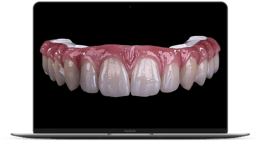 smartmockups k93rty9j | All on 4 / ProArch ® cirkonija v lok. anestezija