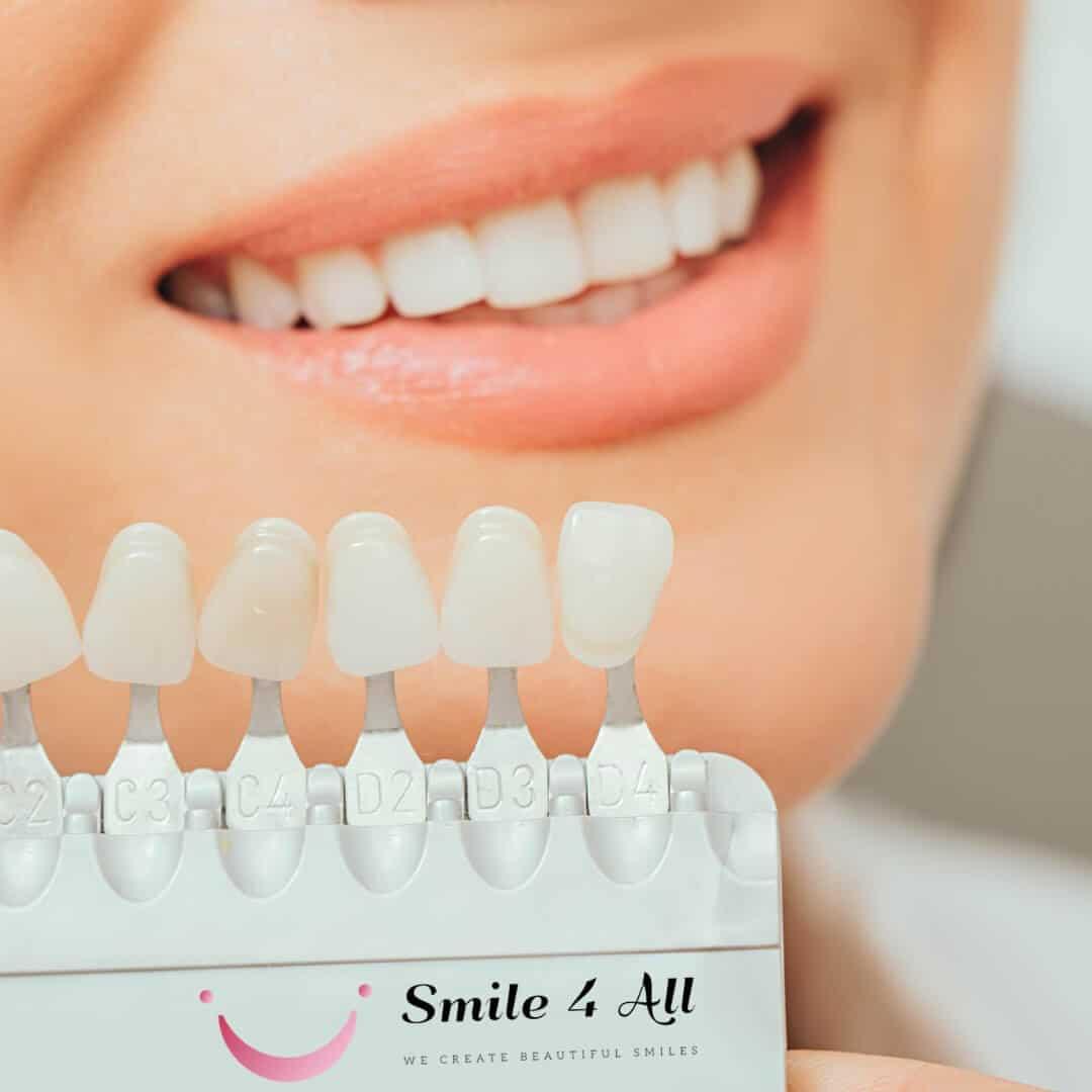 Proizvodi za izbjeljivanje zuba