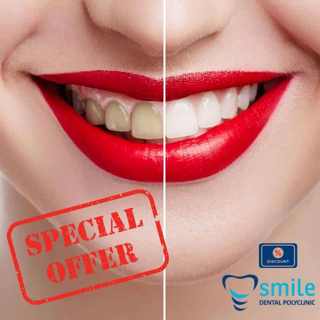 10 3 | Listino prezzi del Policlinico Smile - confirmed
