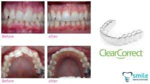 Aligner Clearcorrect