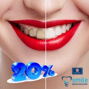 Izbjejivanje zubi laserom