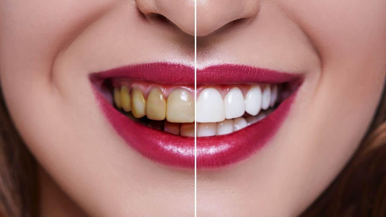 Izbjeljivanje zubi sa laserom