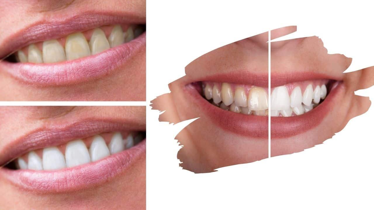 Bijeljenje zubi