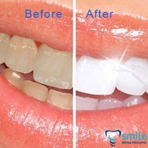 Das Ergebnis nach Zahnaufhellung