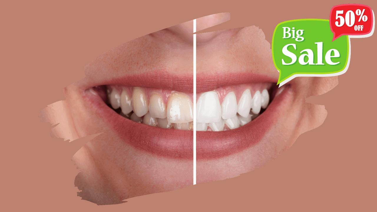 Popust na izbjeljivanje zubi