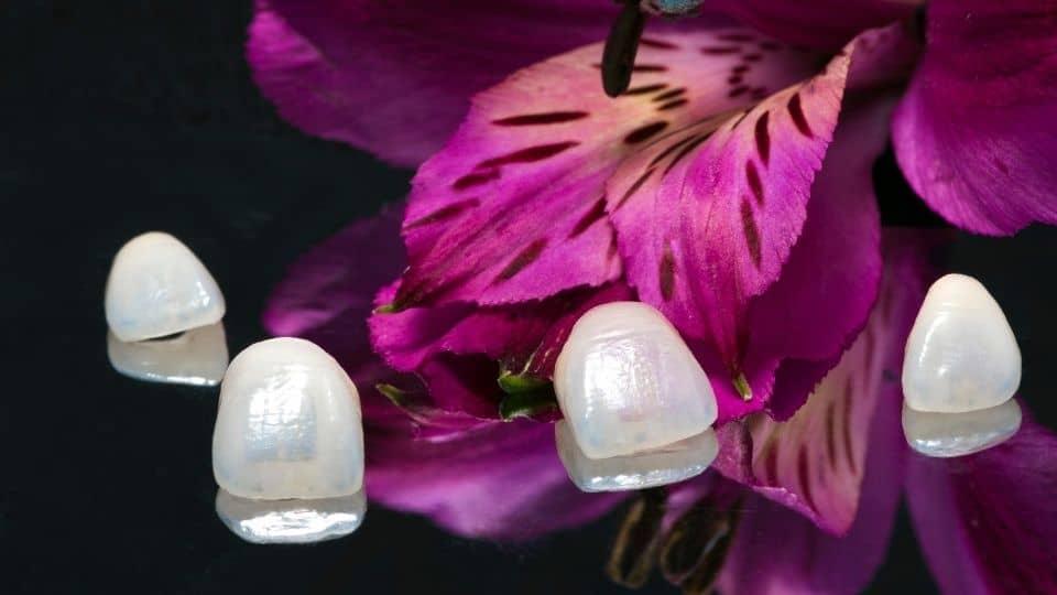 Krunice za zube - zubni most - cirkonske krunice - metal-keramičke krunice - corone dentali - ponte dentale - corone in zirconio - zirconio ceramica