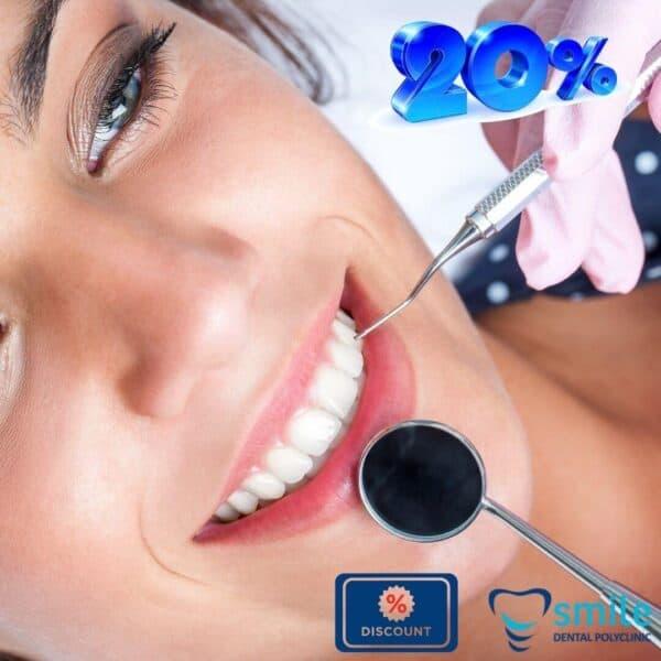 Čišćenje kamenca zubi