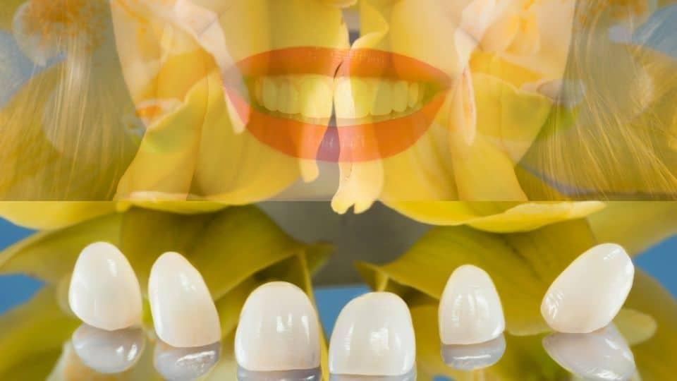 Zubne krunice - zubni most - krunice za zube - cirkonske krunice - metal-keramičke krunice