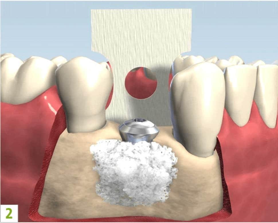 Augmentacija - nadogradnja zubne kosti - regeneracija kosti