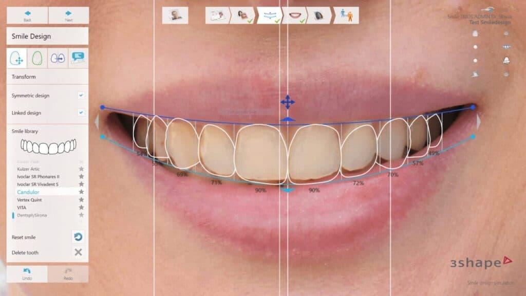 Digital Smile Design - smile makeover - savršen osmjeh - sorriso perfetto