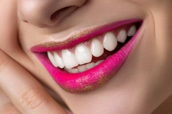 Estetika zubi 1   Proljetna Akcija 20+10