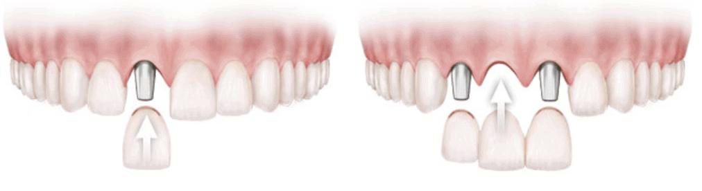 Dentalni Implantat