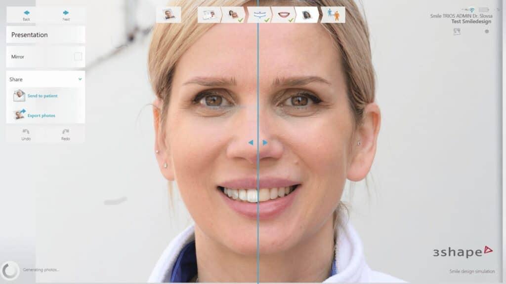 Smile Design - ljuskice za zube akcija