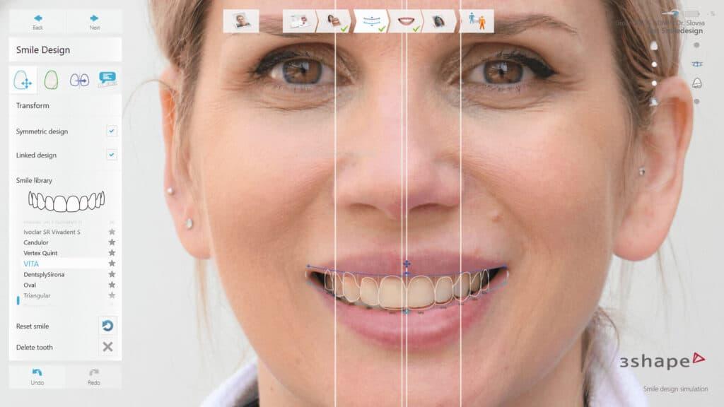 Smile Design8   Digital Smile Design - per il sorriso perfetto su misura per te