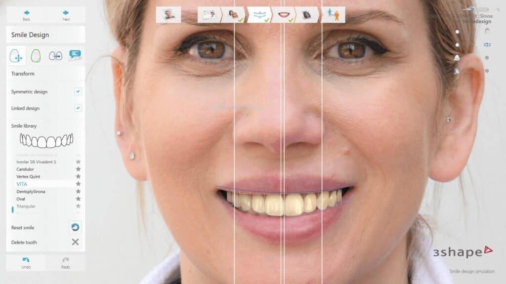 Smile Design9 | Koja je cijena ljuskica za zube i jesu li toga vrijedne?