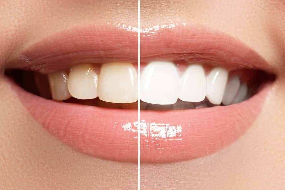 Izbjelivanje zubi
