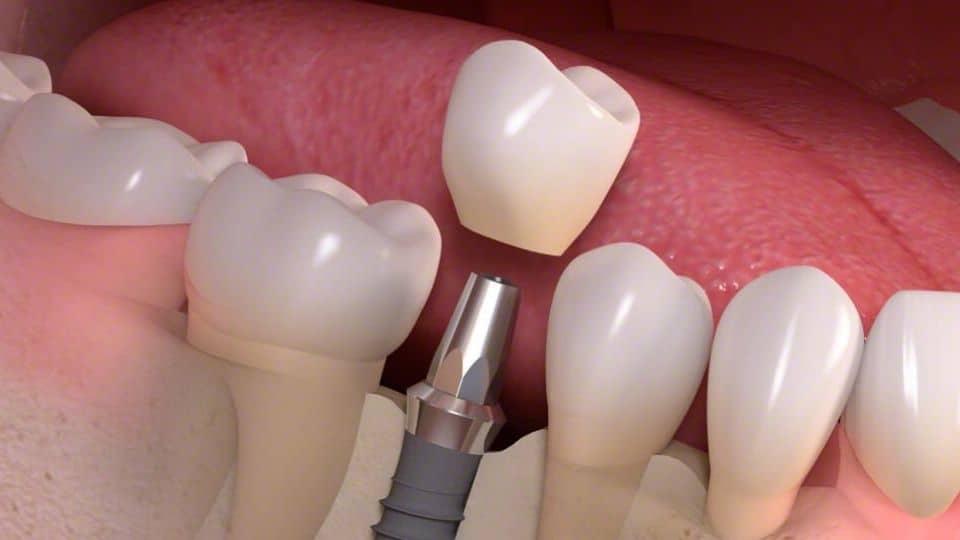zubne krunice - zubni most - cirkonske krunice - metal keramičke krunice - corone dentali - ponte dentale - zirconio ceramica - metallo ceramica