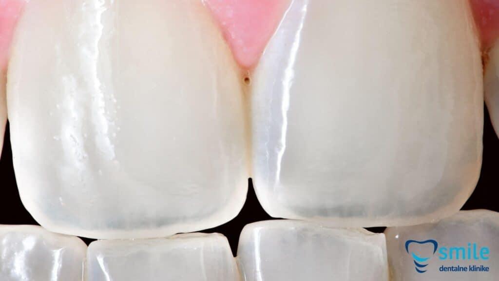 Keramičke zubne ljuskice - ljuskice za zube akcija