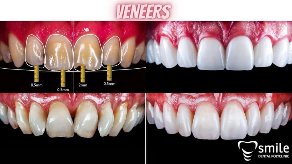 Keramičke zubne ljuskice - faccette dentali