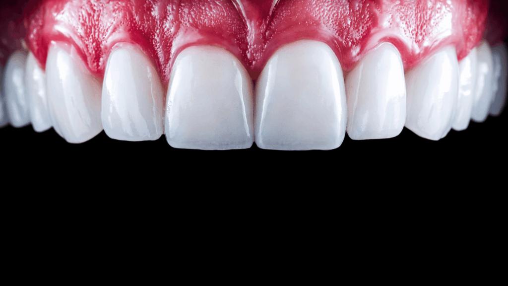 Navlake za zube cijena - Capsula dente prezzo