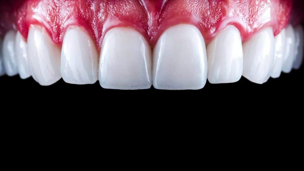 Faccette dentali costi - cijena ljuskica za zube