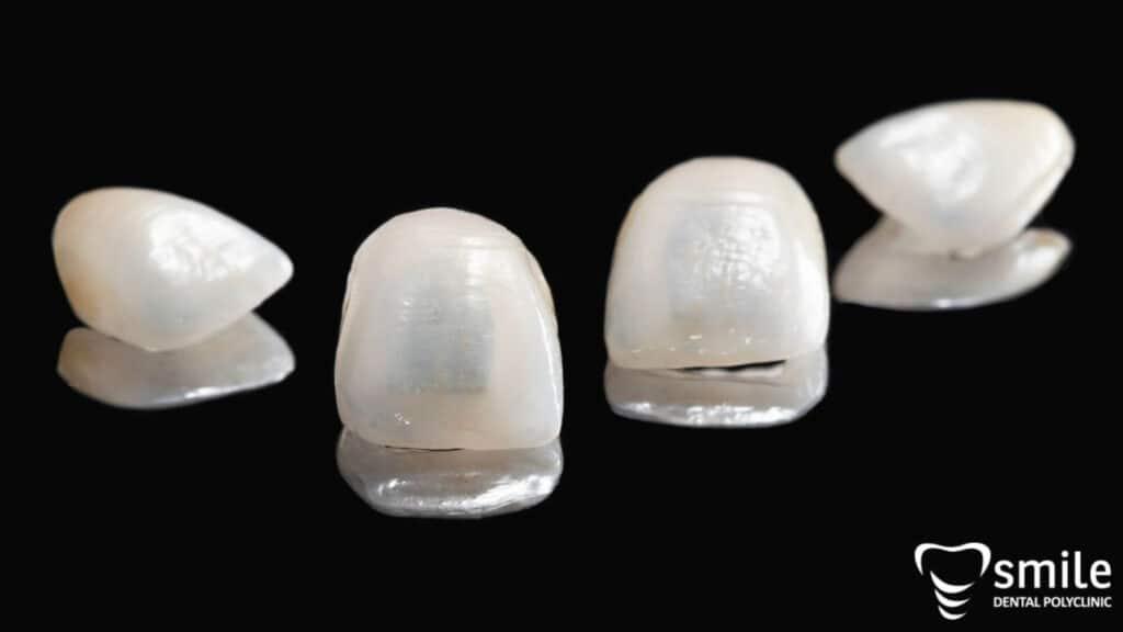 Ljuskice za zube - cijena ljuskica za zube