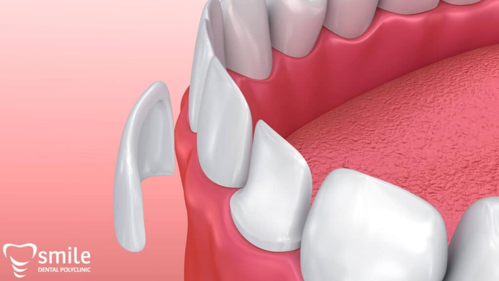 zubne ljuskice - faccette dentali