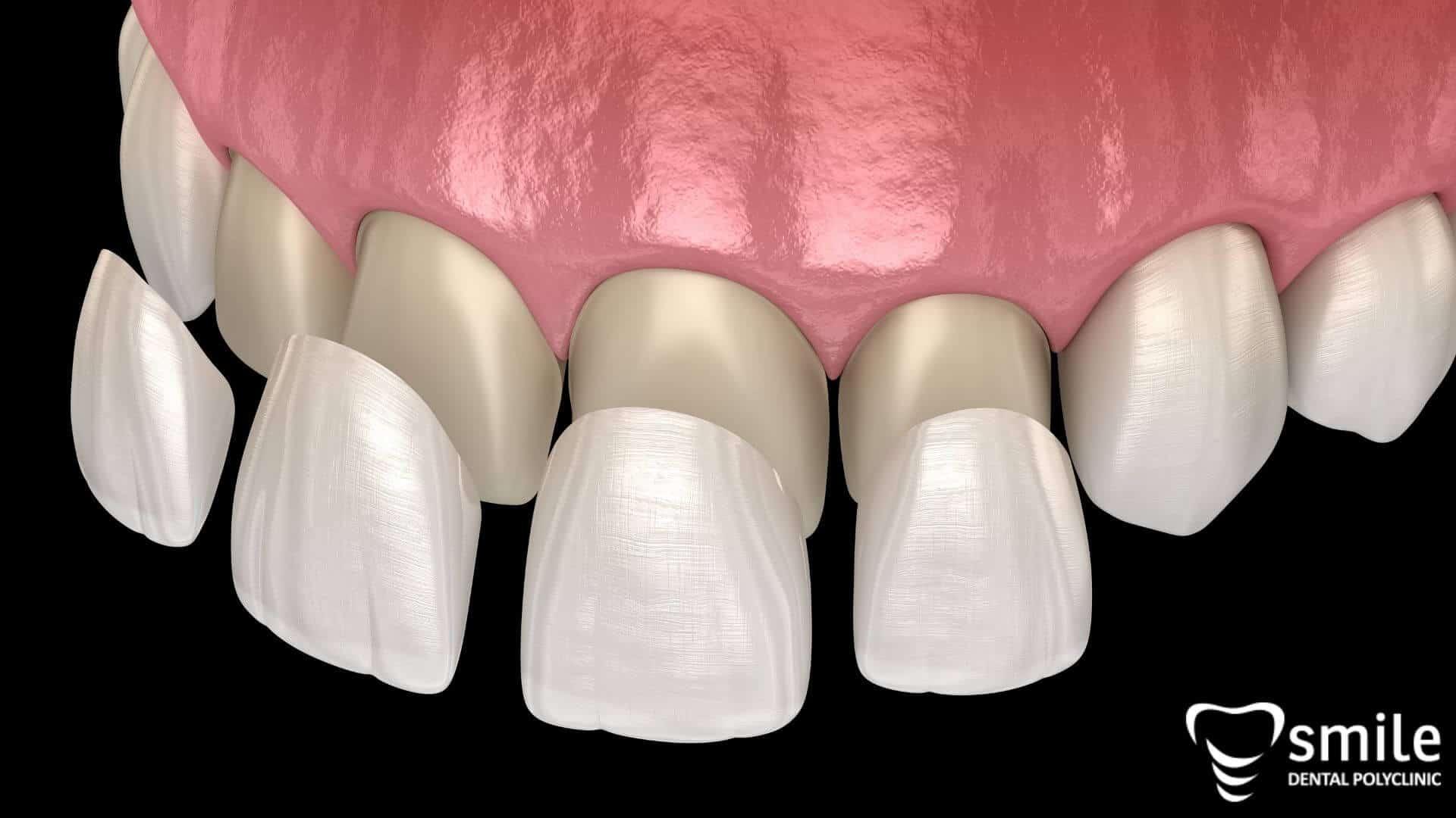 Prednosti zubnih ljuskica
