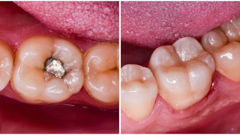 Amalgama - Rimozione amalgama dentale