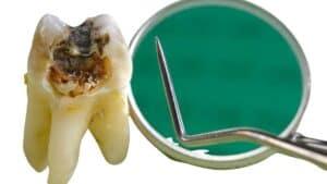 Karijes na zubu i Amalgam - carie denti