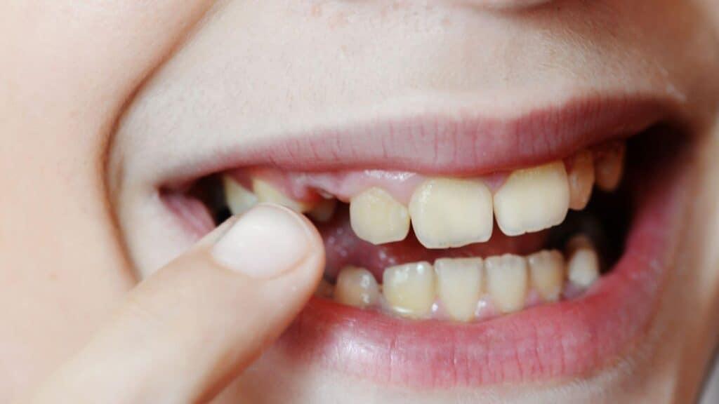 Ispadanje mliječnih zuba - La caduta dei denti decidui